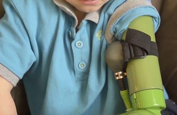 Un joven inglés obtiene un brazo ortopédico robotizado